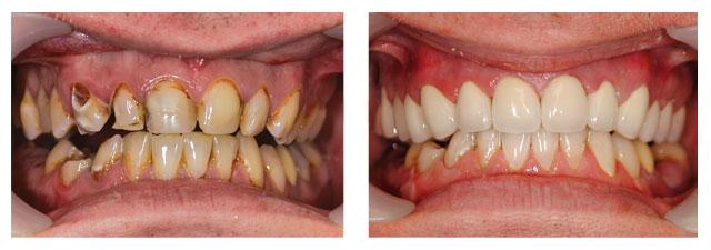 comment soigner ses dents pas cher