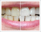 Tooth whitening at Vitaleurope Budapest