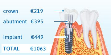 VitalEurope - Smile Company - Dental implants for tooth replacement